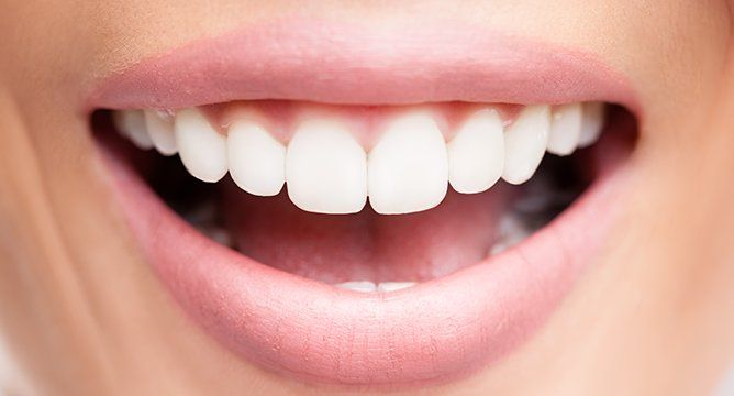 Beauty DIY: How To Whiten Your Teeth With Turmeric