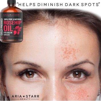 Aria Starr Rosehip Seed Oil Organic Cold Pressed For Face, Skin & Scars - 100% Pure Essential Oil - 4oz