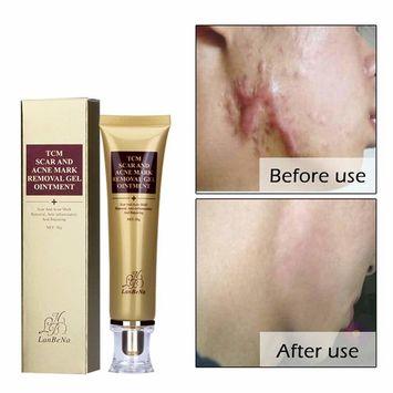 GARYOB Acne Scar Removal Cream Skin Repair Face Cream for Burns Cuts Operation Stretch Mark Remover Acne Scar Treatment