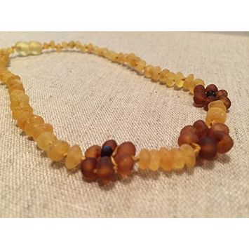 Baltic Amber 15 Inch Raw Lemon Flower Necklace. Teen child some adults. Anti-inflammatory, cramps, growing pains, fever, body ache, head ache...