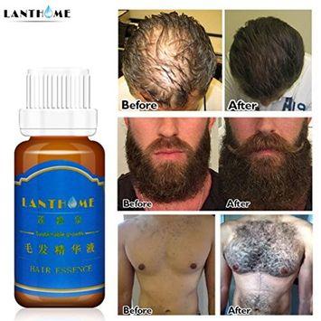 Hair Growth Liquid,20ml Hair Growth Liquid Spray Extra Strength of Hair Anti Hair loss Essence